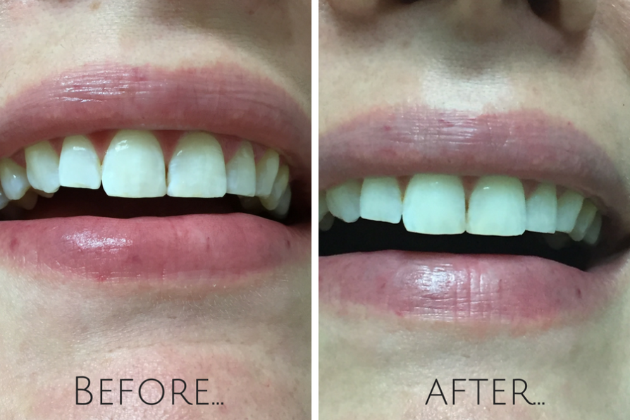 Smile Brilliant results after just ONE teeth whitener application! Check out the before and after here.